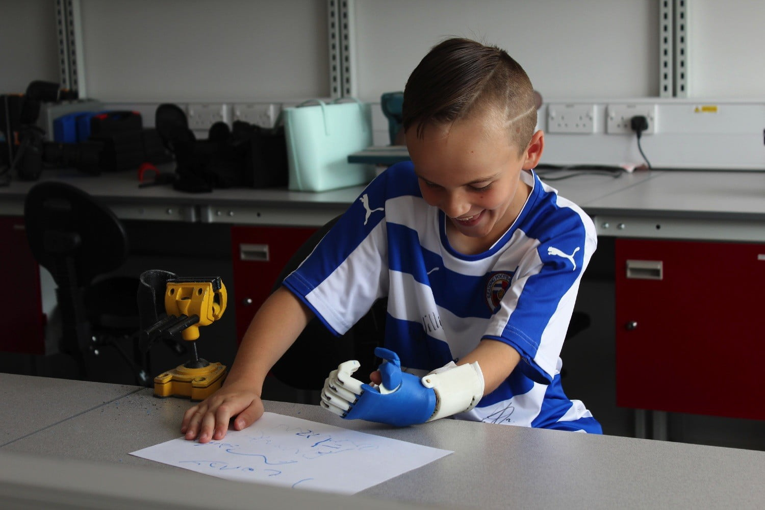 3d printed prosthesis soccer 3dprinthand3