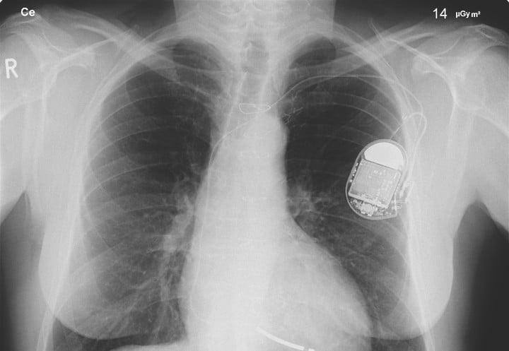 1124645 autosave v1 pacemaker heart