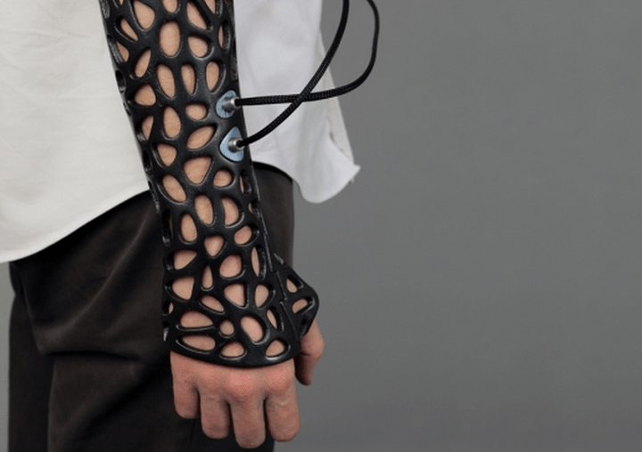 osteoid 3d printed cast uses ultrasound heal bones 40 faster screen shot 2014 04 18 at 11 23 08 am